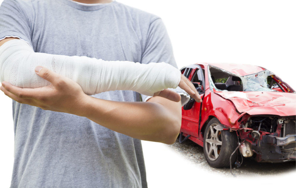 Close up of a man's casted arm with his totaled vehicle in the background