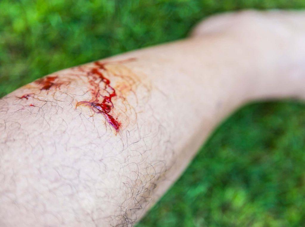 Close up of dog bite victim's bleeding leg